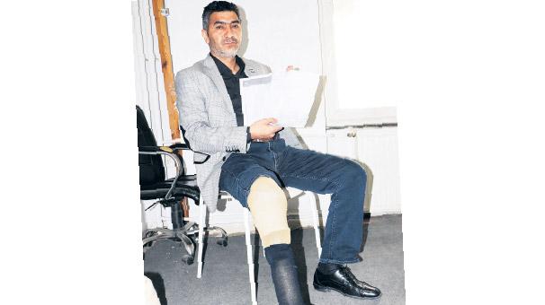 Gaziye protez  bacak icrası